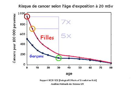 Risque de cancer selon l'âge d'exposition à 20 mSv